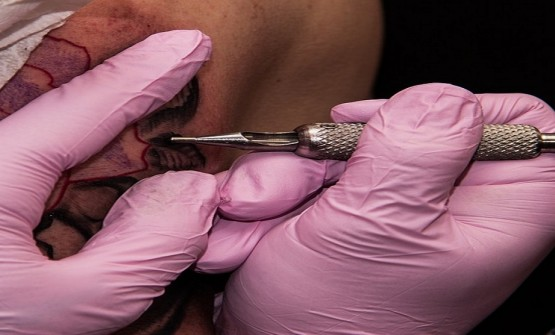 Super Effective Way to Remove Your Permanent Tattoo